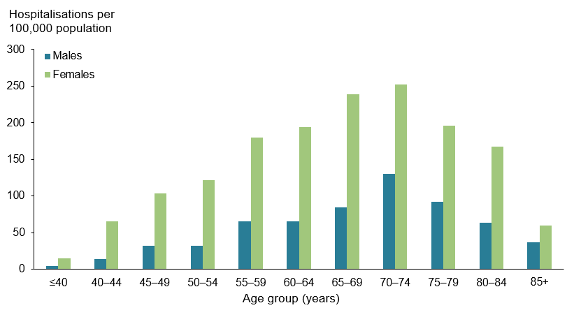 This vertical bar chart compares the rate (per 100,000 population) of hospitalisations for rheumatoid arthritis, across various age groups by sex, in 2016–17. The rate of hospitalisations was highest in the 70–74 age group for both males (130) and females (252), and lowest in the <40 age group for both males (4) and females (15).
